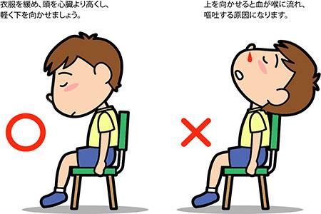 子供 鼻血 対応